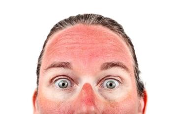 日焼けが痛い赤い